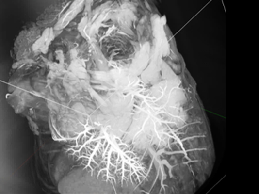 マウスのX線CT撮影画像2