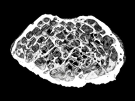 骨のX線CT撮影画像2